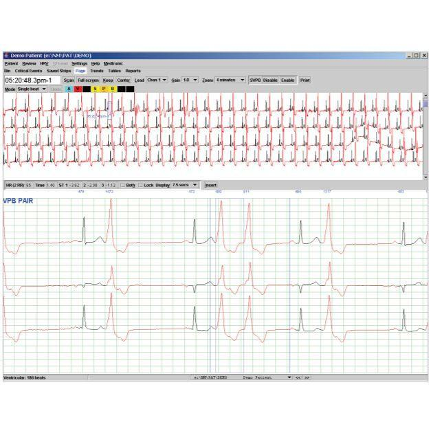 QRS Holter LX Analysis Software